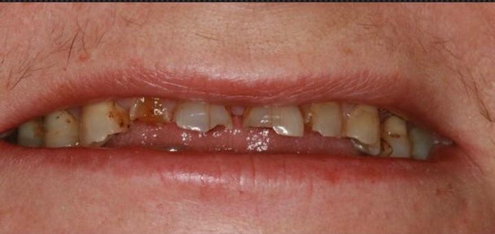 Before-odbudowa starych zębów materiałem kompozytowym