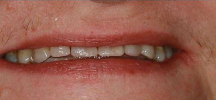 After-odbudowa starych zębów materiałem kompozytowym